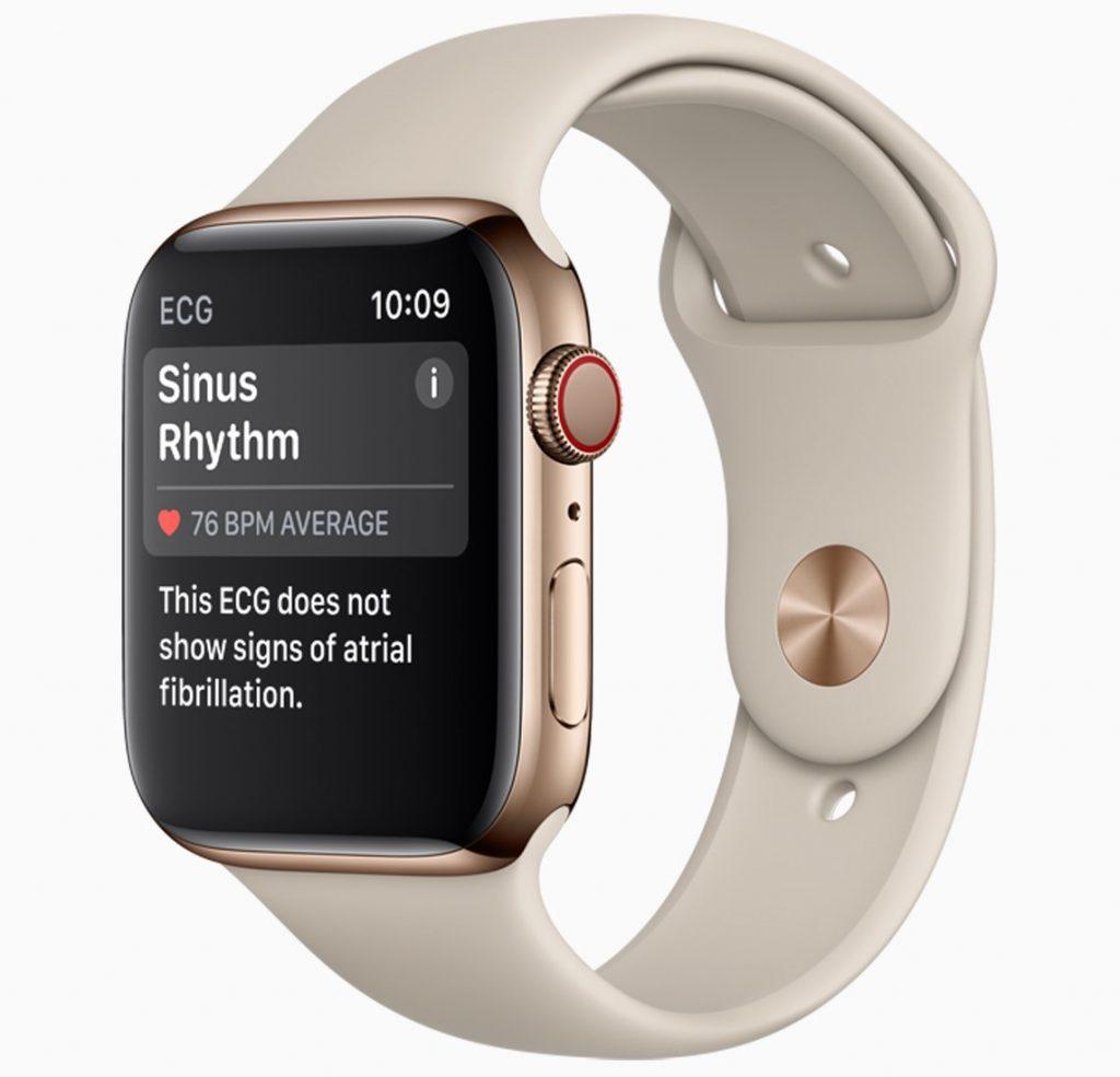 Apple Watch 4 med hvit reim.